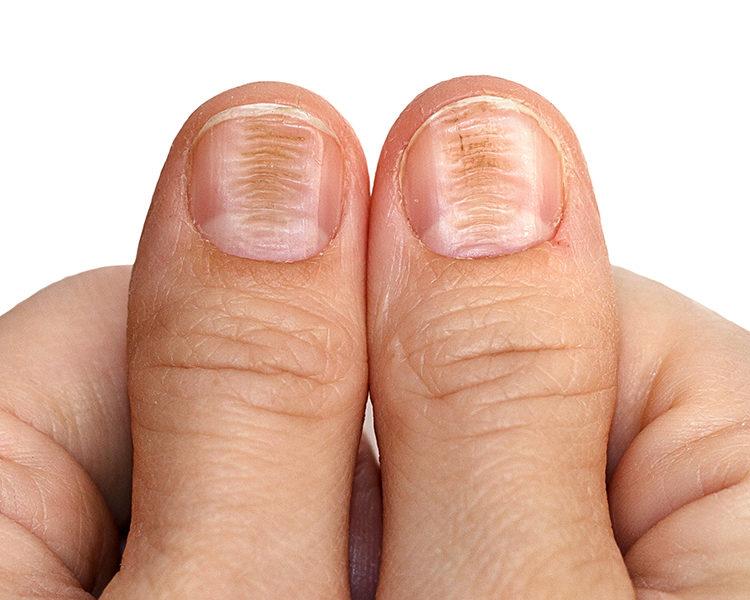 Resultado de imagem para Doenças de unhas